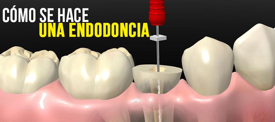 Cómo se hace una endodoncia